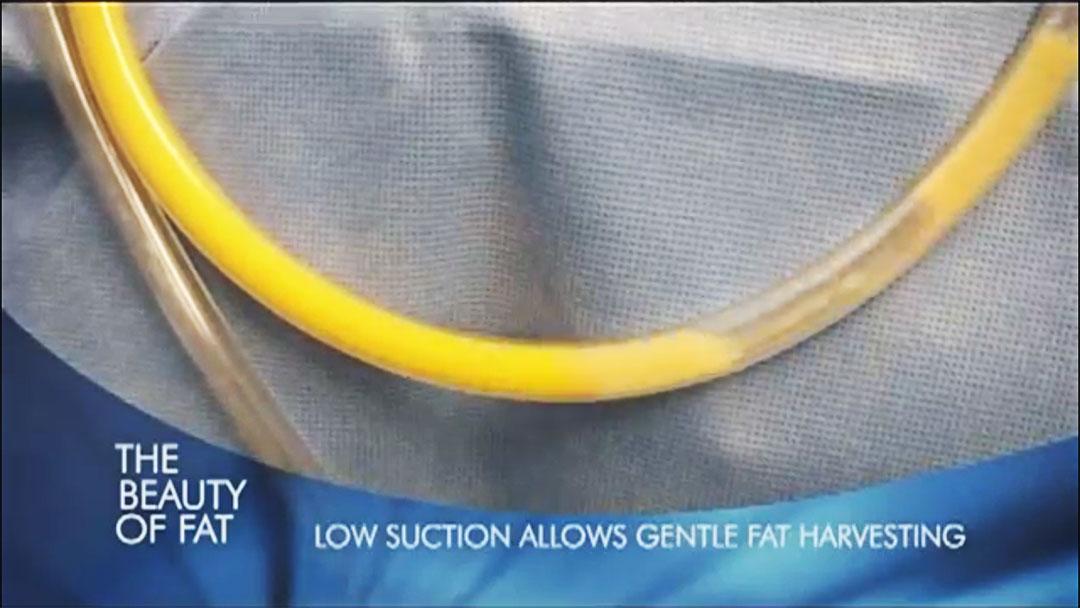 微粹脂作用脂肪