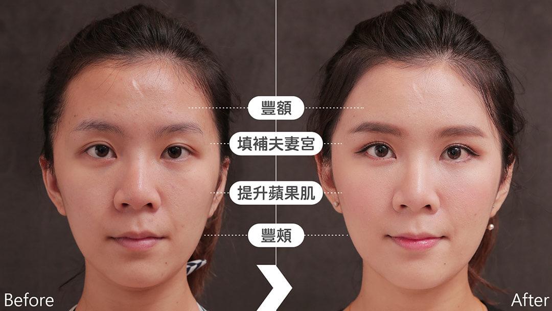 微粹脂自體脂肪移植豐額填補夫妻宮蘋果肌豐頰案例