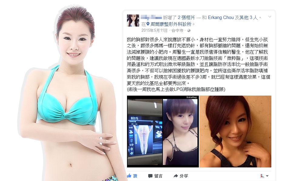 微粹脂自體脂肪移植豐額填補夫妻宮蘋果肌豐頰案例1