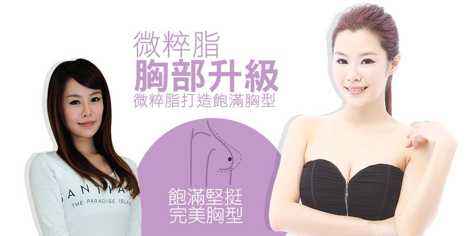 微粹脂自體脂肪移植豐胸隆乳案例1
