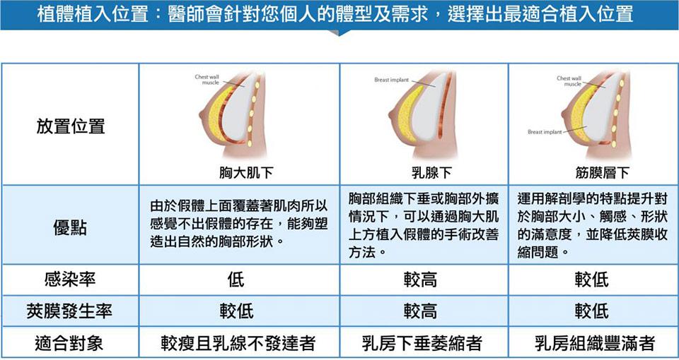 果凍矽膠隆乳植入體位置