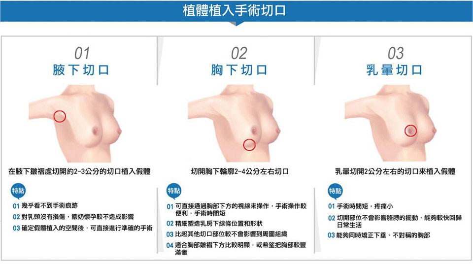 果凍矽膠隆乳植入體手術切口