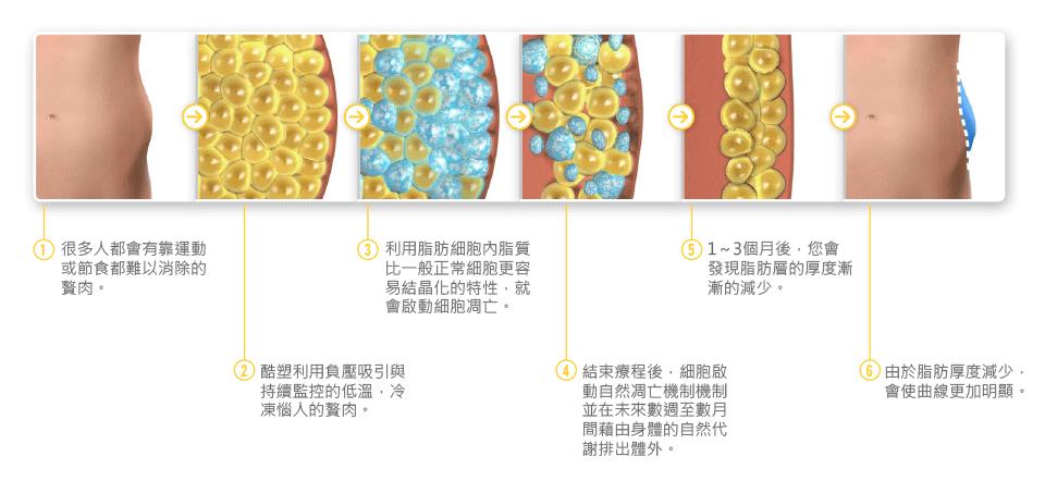 冷凍減脂酷爾塑平(酷塑)的作用過程
