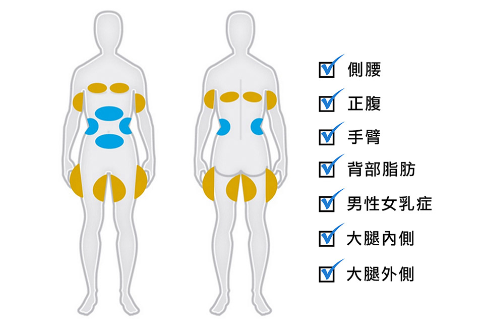 冷凍減脂酷爾塑平(酷塑)的適用對象