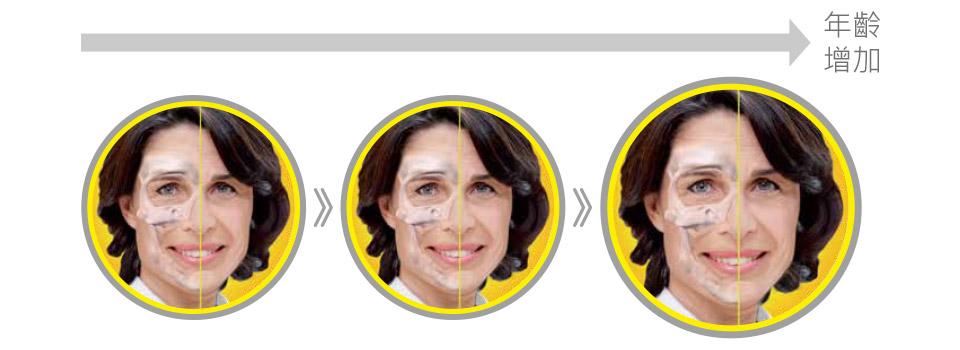 臉部拉提專家