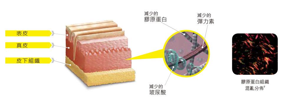 皮膚老化時膠原蛋白的流失