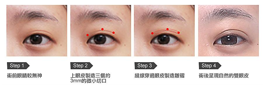 八字縫雙眼皮手術方法