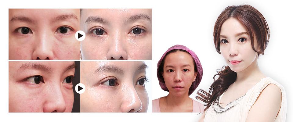 隱痕眼袋+八字縫雙眼皮見證案例