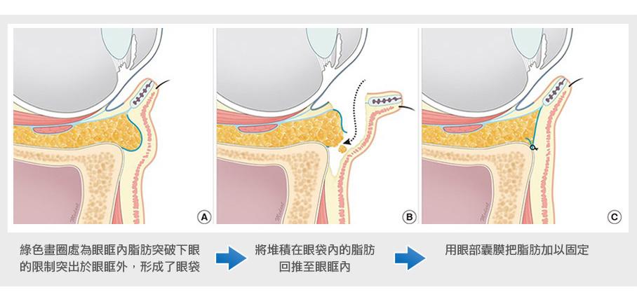隱痕眼袋手術方法