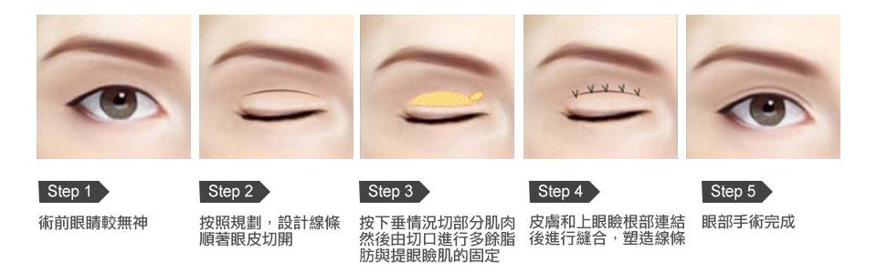 割式雙眼皮的手術方法