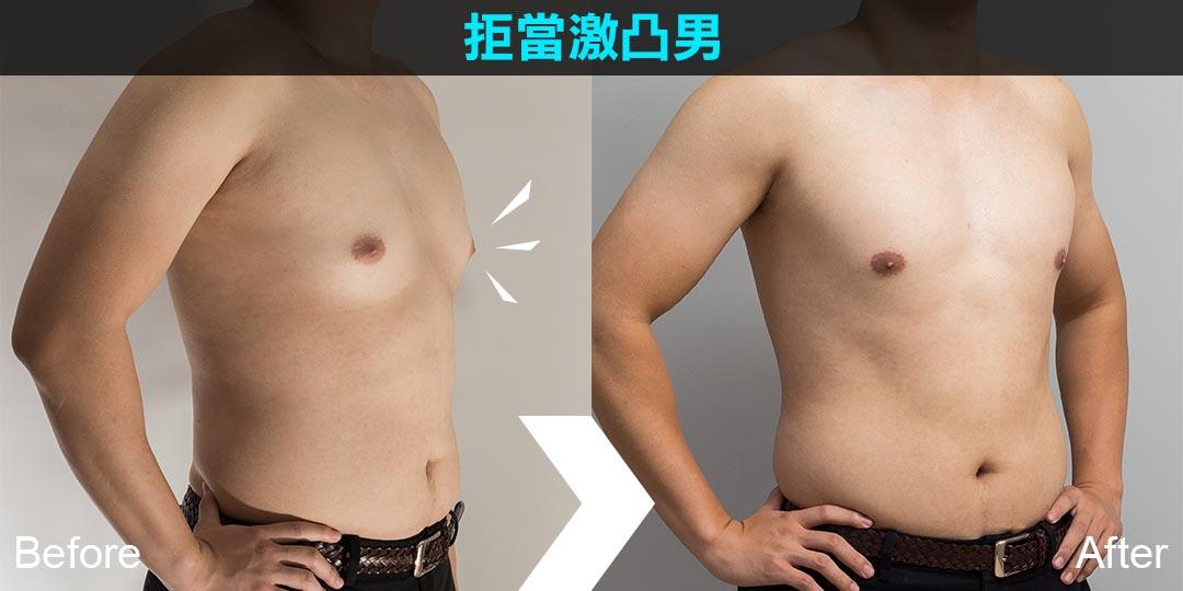 周爾康醫師男性女乳症治療案例手術後