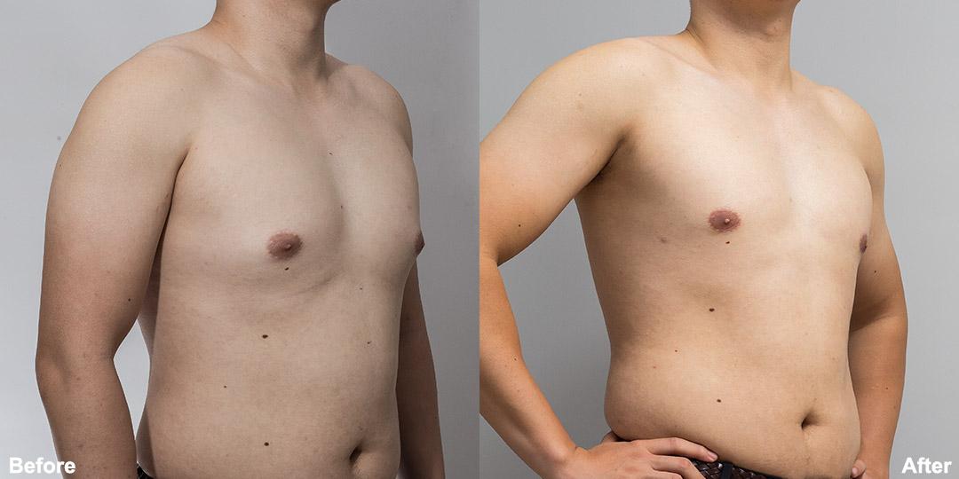 男性女乳症案例
