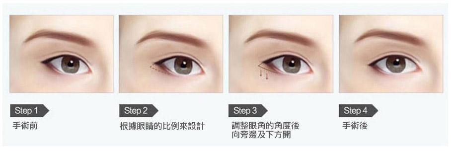 開眼尾術後變化