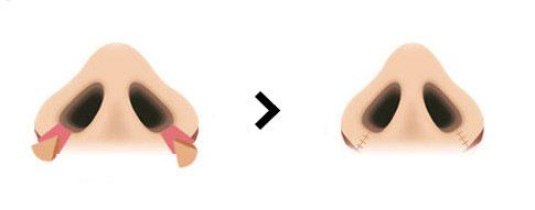 縮鼻翼手術示意圖1