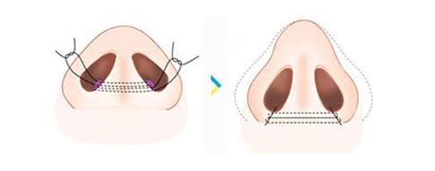 縮鼻翼手術示意圖2