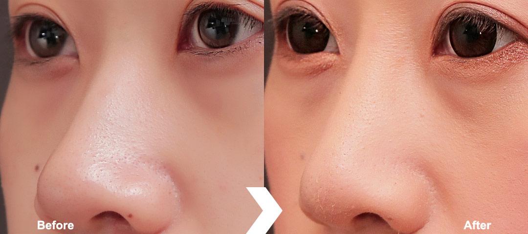 隆鼻/鼻整形(三段式鼻整形)案例1