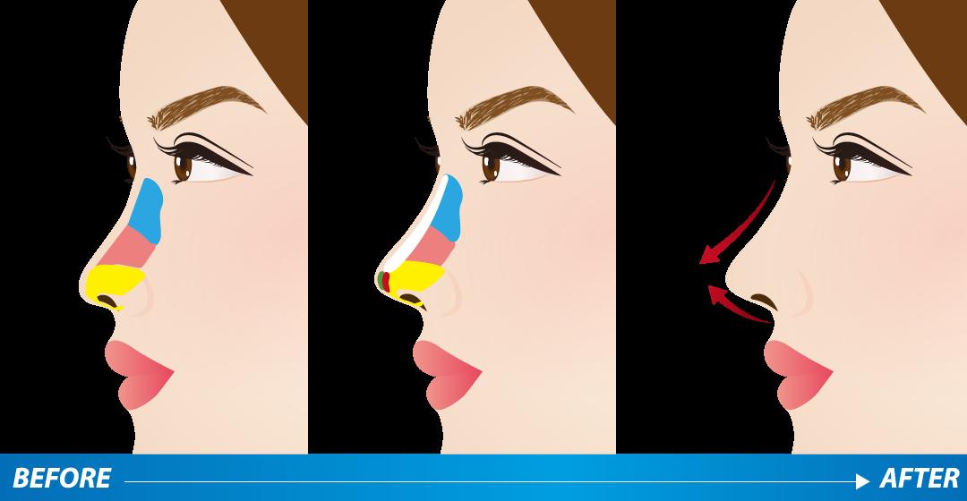 鼻樑增高方式