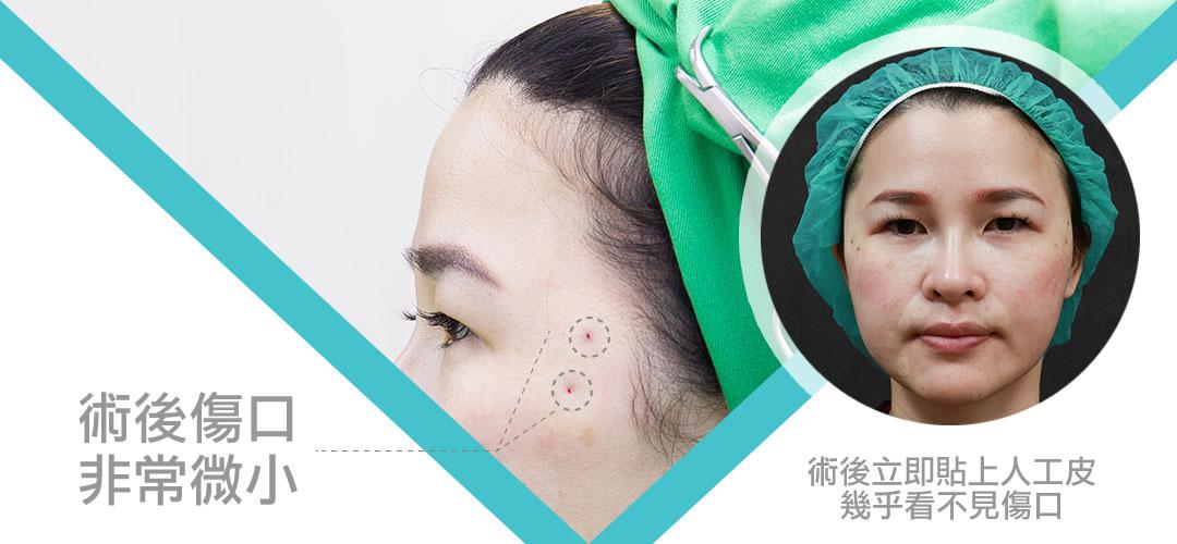 塑立愛塑型線Silhouette Instalift傷口微小