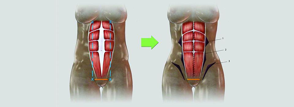 4D小腹拉皮的手術示意圖