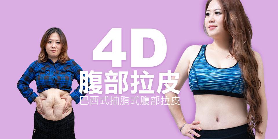 4D腹部拉皮