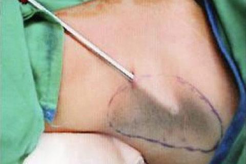 電動旋轉刮刀切除頂漿腺狐臭根除術