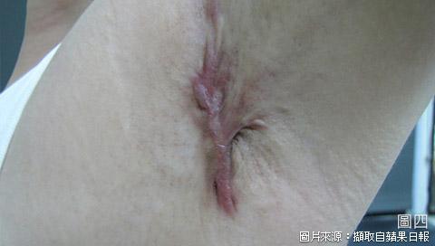 VASER威塑除狐臭手術治療疤痕