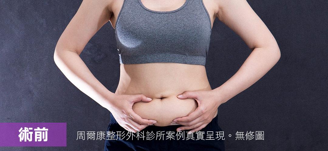 周爾康醫師威塑腹部抽脂案例術前照