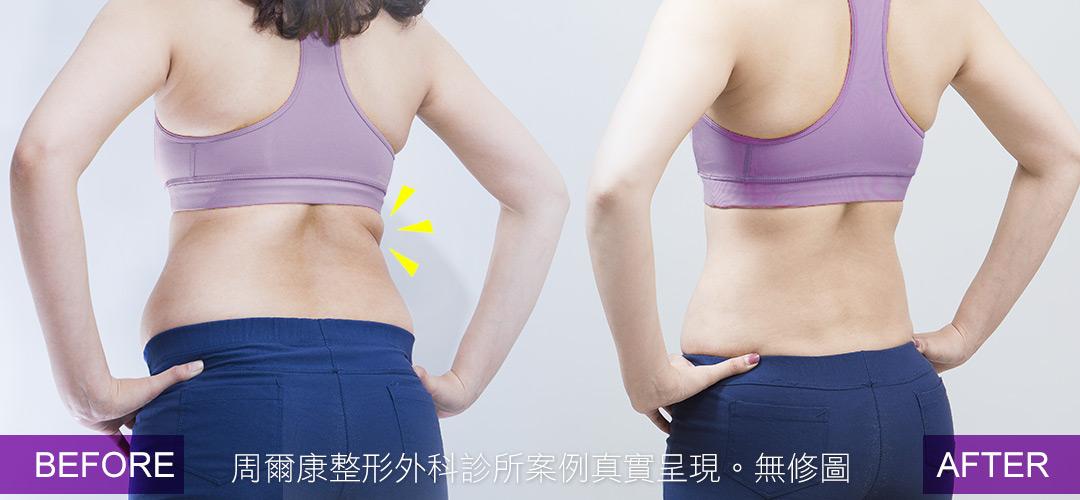 周爾康醫師威塑腹部抽脂案例術前術後對比照