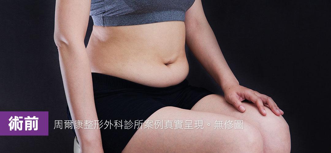 周爾康威塑腹部抽脂案例術前大肚便便樣貌