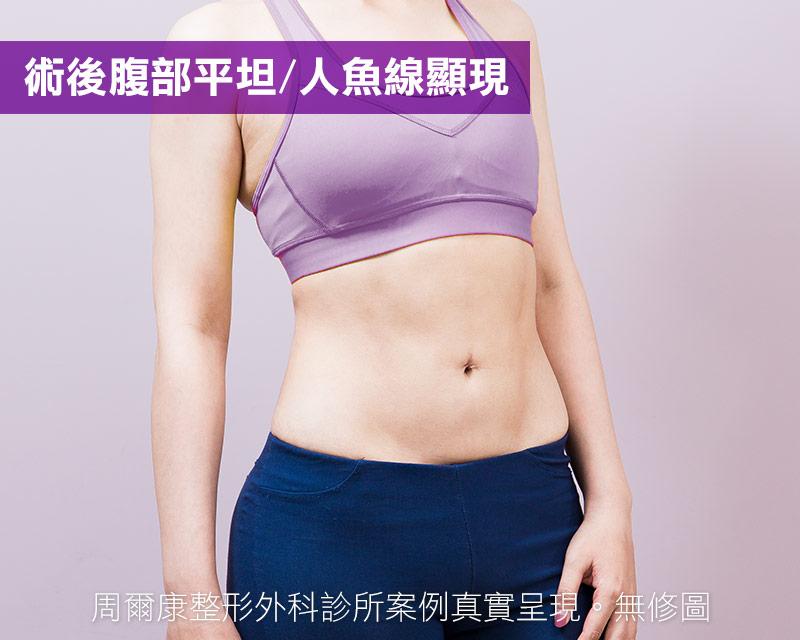 腹部抽脂術後腹部平坦,人魚線顯現
