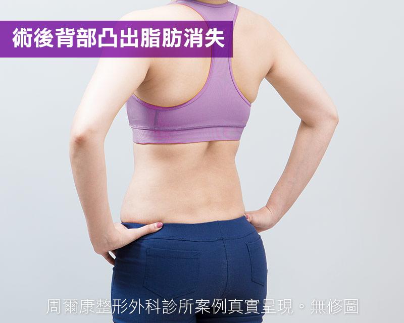 腹部抽脂術後背部凸出脂肪消失