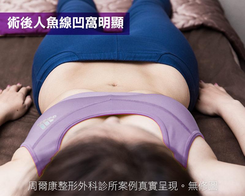 腹部抽脂術後人魚現凹窩明顯