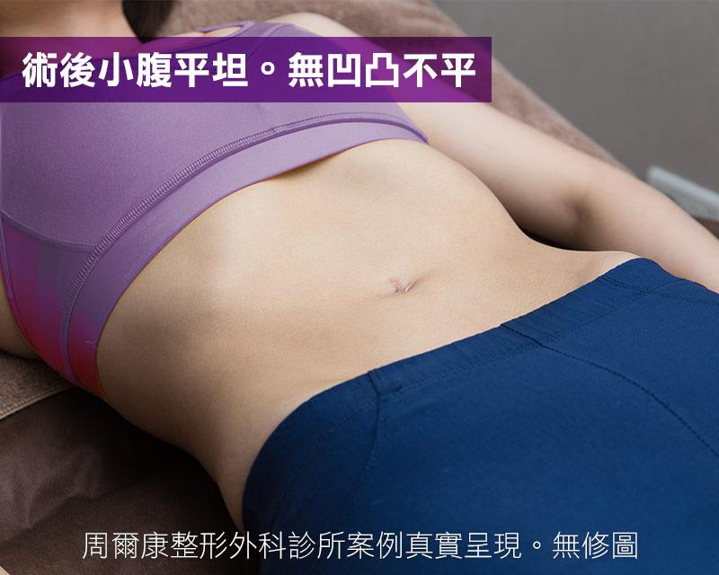 腹部抽脂術後小腹平坦,無凹凸不平