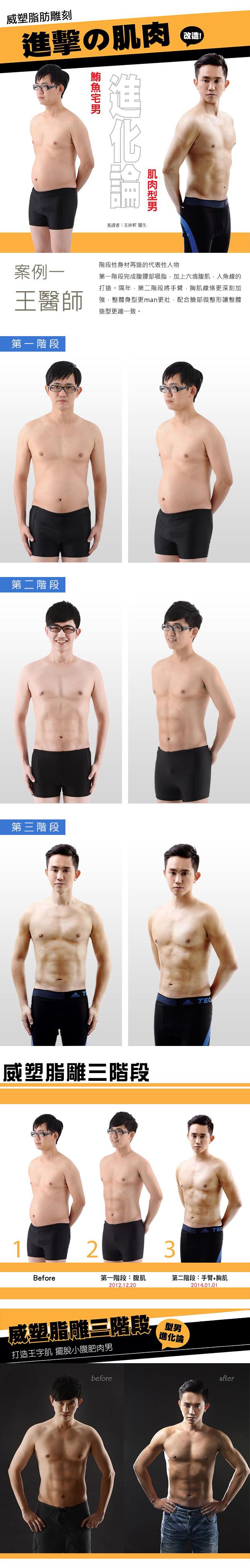 王祚軒醫師威塑雕塑身型六塊肌
