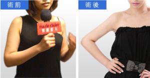 抽脂推薦:手臂抽脂