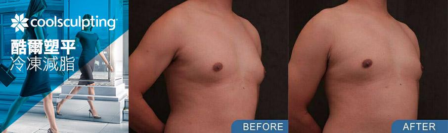 男性女乳症手術 - 冷凍減脂