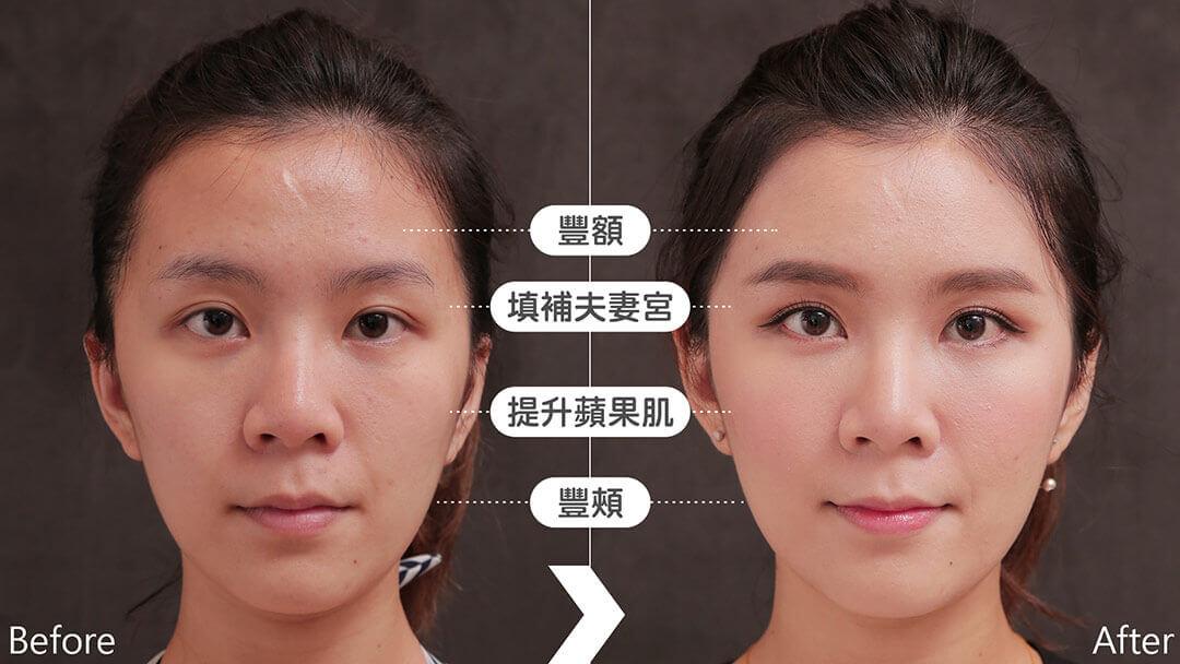 自體脂肪豐頰補臉