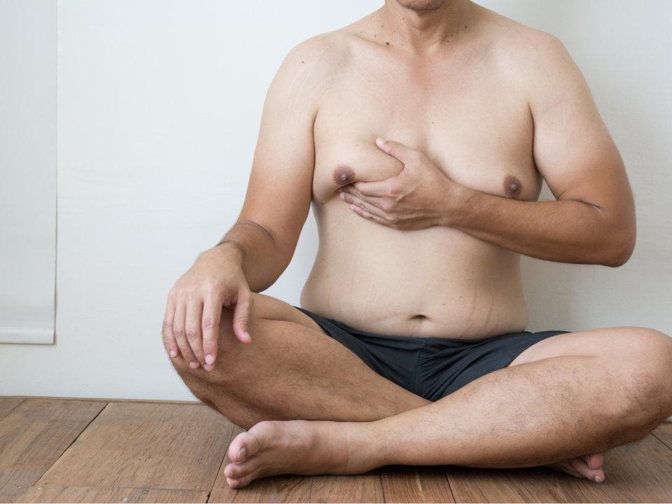 男性女乳症
