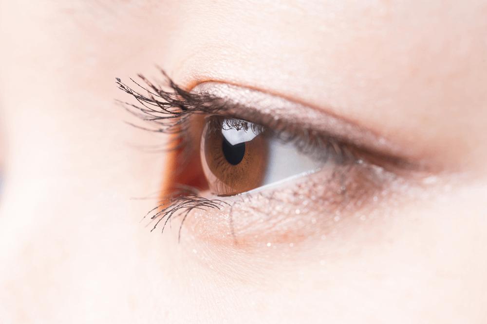 雙眼皮手術後