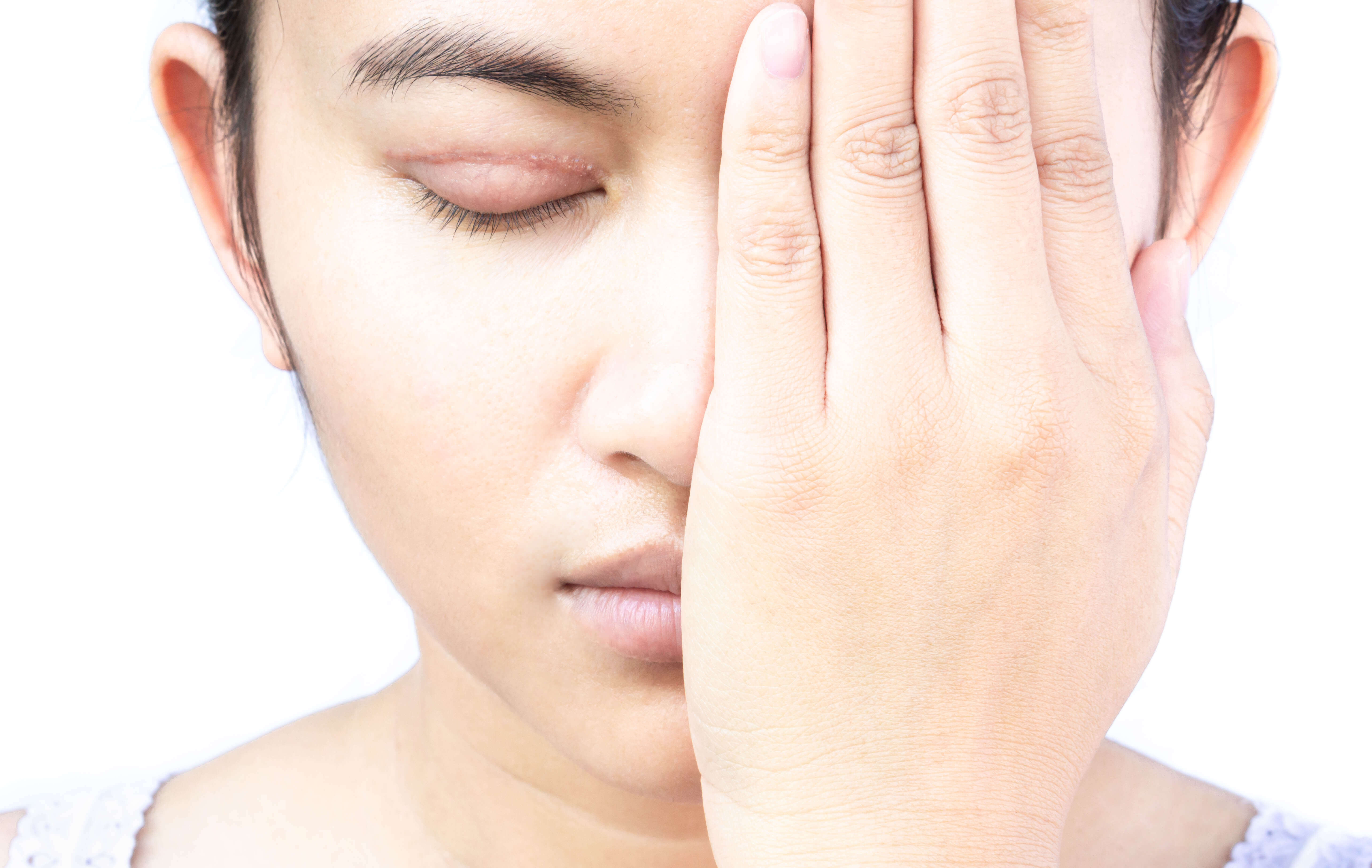 雙眼皮手術術後照