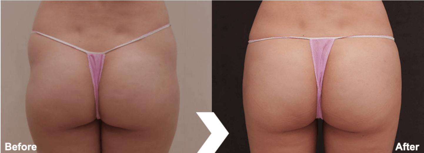 自體脂肪豐臀案例3