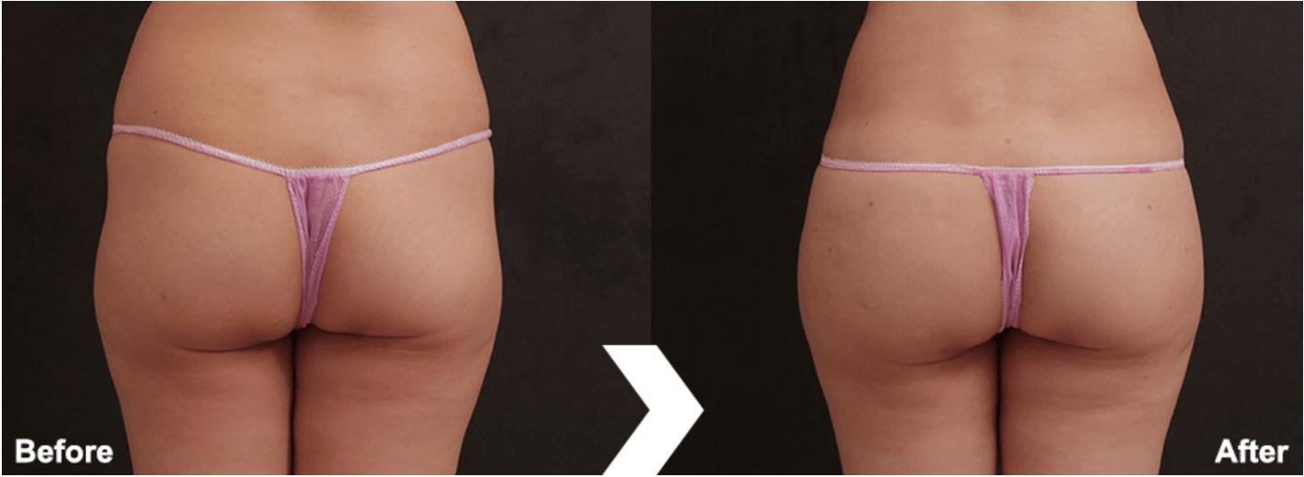 自體脂肪豐臀案例2