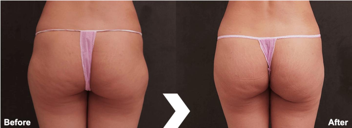 自體脂肪豐臀案例4