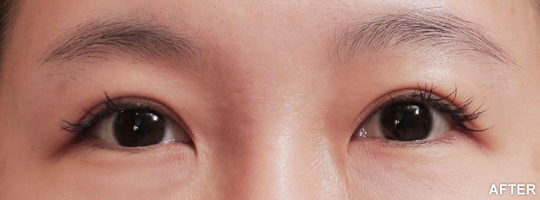 縫雙眼皮失敗避免案例
