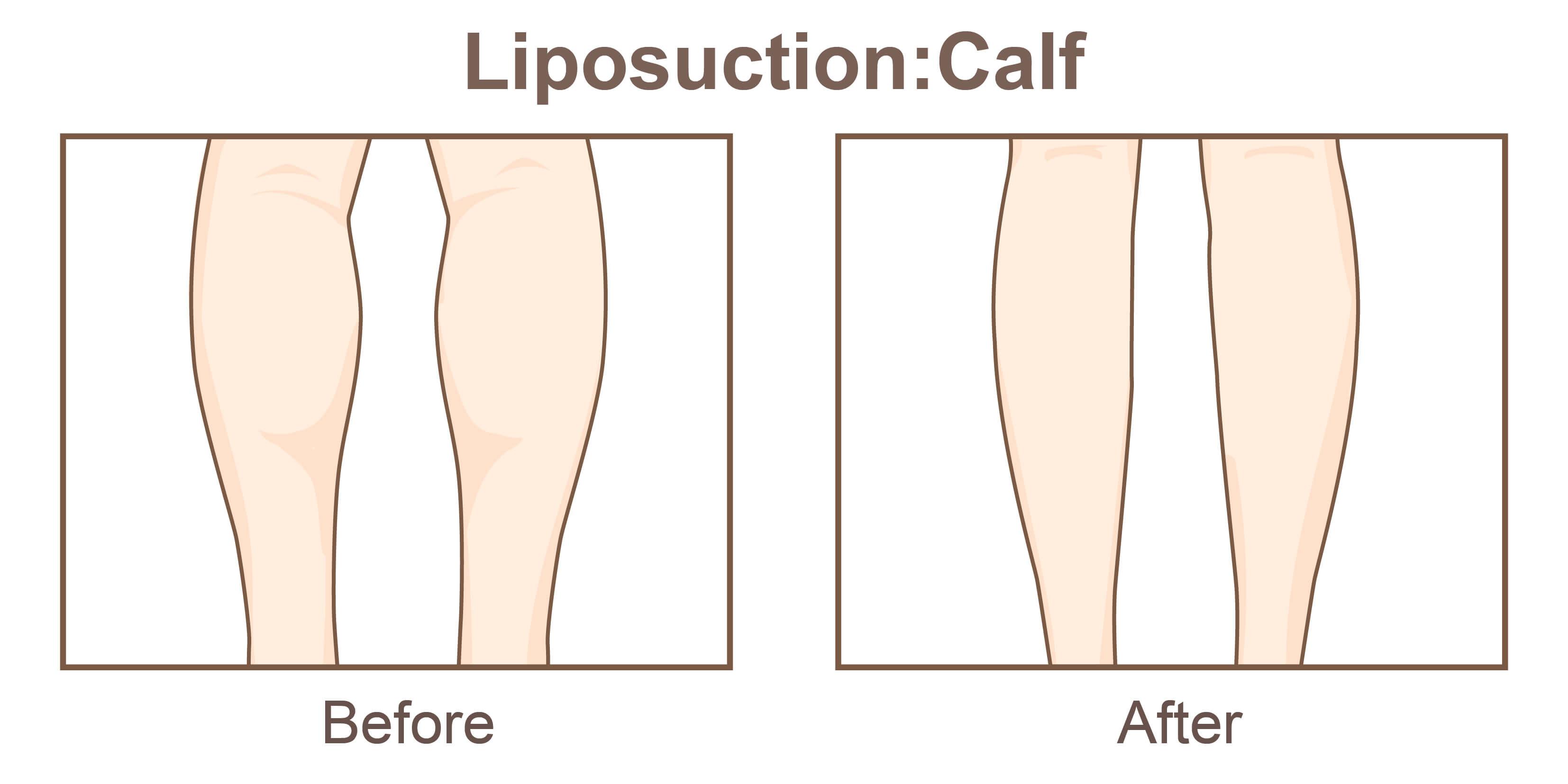 小腿抽脂後遺症