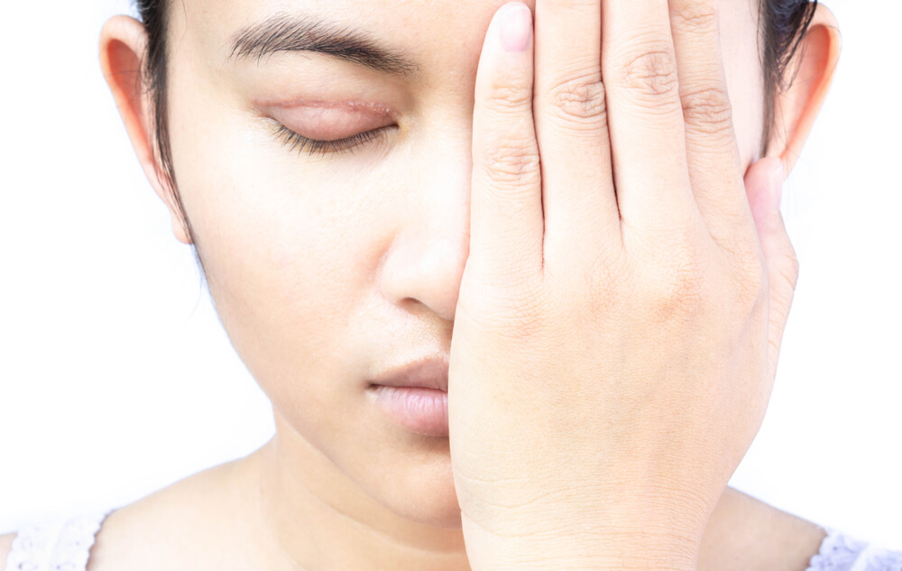 縫雙眼皮失敗怎麼辦