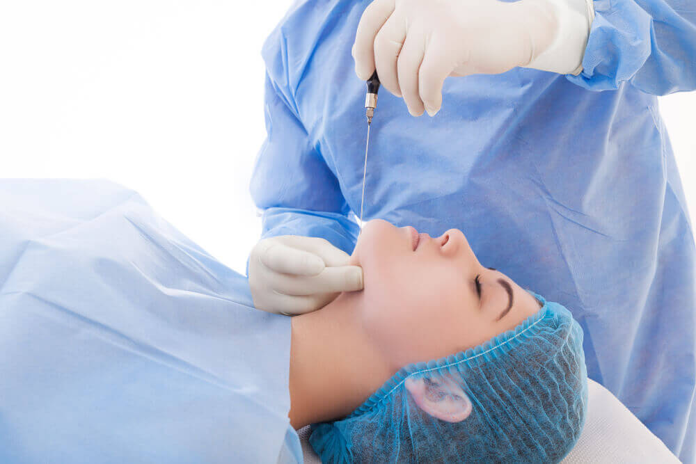 雙下巴抽脂手術類型